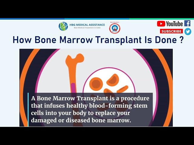 How Bone Marrow Transplant Is Done ?