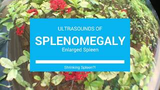 Splenomegaly with Ultrasound of Spleen Getting Smaller! Polycythemia