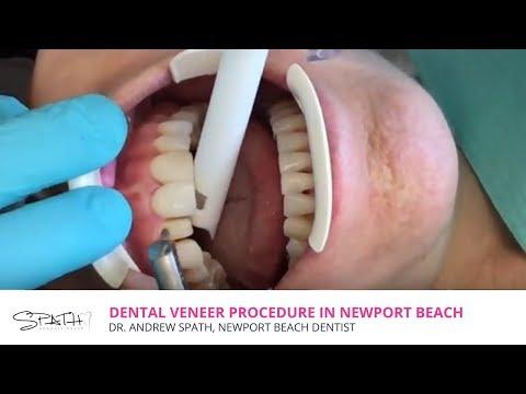 Dental Veneer Procedure In Newport Beach, CA | Spath Dentistry
