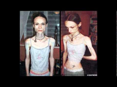 Barbie- A Thinspiration