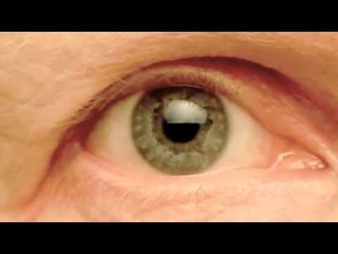 My Right Pupil Exhibiting:   Hippus / Pupillary Athetosis