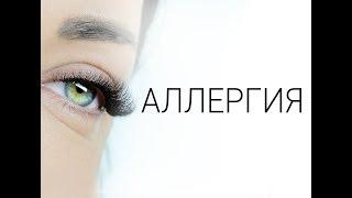Аллергия при наращивании ресниц. Эксперты взгляда Beauty Eyes