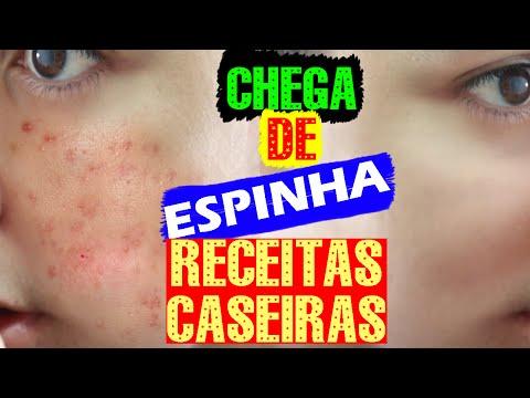 5 RECEITAS CASEIRAS para ACABAR com as ESPINHAS em minutos