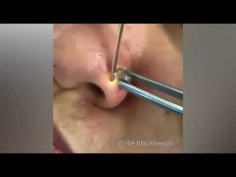 Top 15 viral pimple popping puss removal!! SOOO GROSSS!!