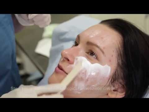 How to treat Acne scars on the face using Microneedling