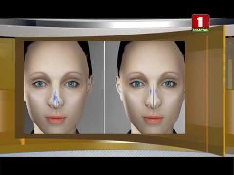 Вопрос: Как уменьшить заложенность носа?
