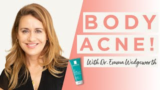 How To Prevent And Treat Body Acne | Dr Sam Bunting