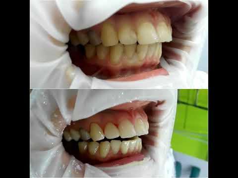 Лечение передних зубов Харьков