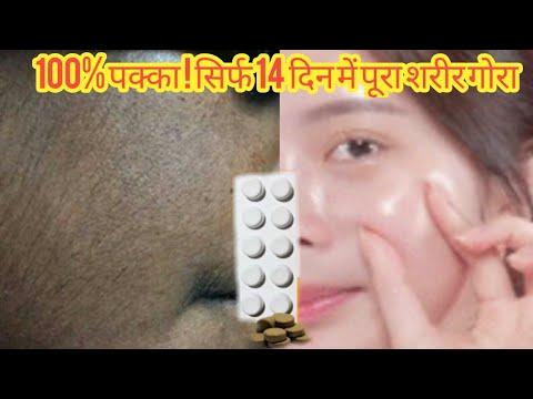 100%-पक्का-!-सिर्फ-14-दिन-में-पूरा-शरीर-गोरा-|-fair-skin-|-skinwhitening-|-jhaiyo-ka-ilaj-|-brijwasi
