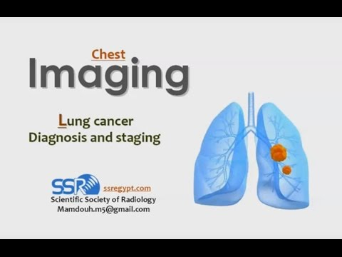 Imaging of Lung cancer - Prof Dr. Mamdouh Mahfouz (In Arabic)