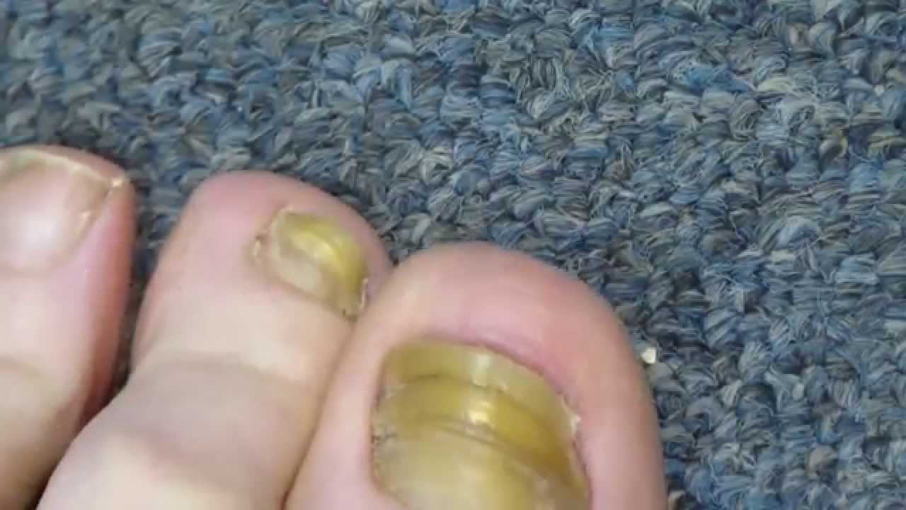 My Toenail Fungus Sucess Story - YouTube