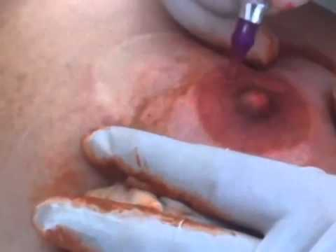 Breast Reconstruction Nipples 18