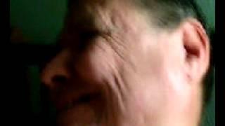 hoyuelos y pliegues en la mejillas