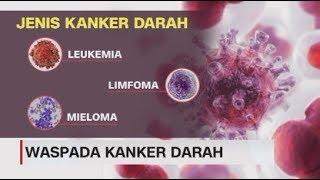 Kanker Kelenjar Getah Bening : Gejala, Penyebab dan Mencegah | lifestyleOne.
