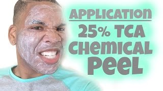 chemical peel   25 tca peel application hd   session 4 re upload
