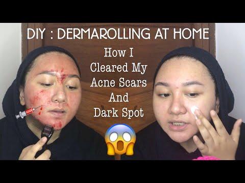 DIY : DERMAROLLING AT HOME | Cara memudarkan Bopeng Bekas Jerawat | Bahasa Indonesia | Diendiana - YouTube