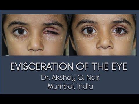 ocular-evisceration-(eye-removal)-hd-video:-dr-akshay-g-nair,-mumbai