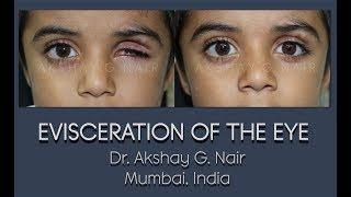 Ocular Evisceration (Eye Removal) HD Video: Dr Akshay G Nair, Mumbai