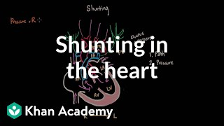 shunting in the heart   circulatory system and disease   nclex rn   khan academy