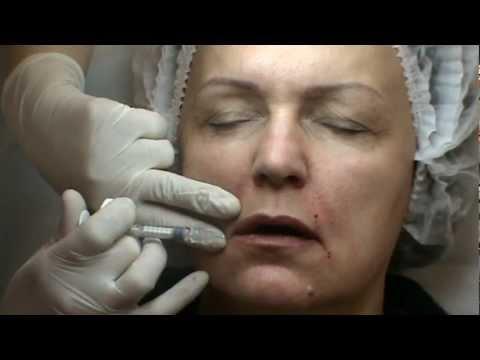 Препарат princess основан на гиалуроновой кислоте неживотного происхождения, которая благодаря своему составу биосовместима с тканями кожного покрова человека. Сделать инъекции филлеров можно в косметологии дасклиник.