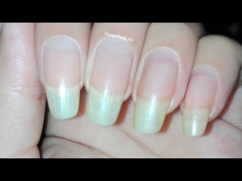 How to make your nails grow faster in 1 week