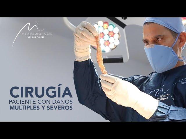 Cirugía retiro de Biopolímeros | Paciente con daños múltiples y severos. Parte 3