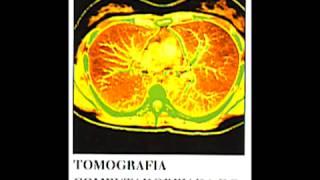 O que é câncer - Prof. Tanio
