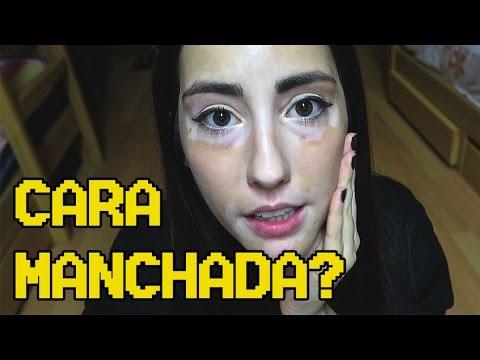 Por que tenho manchas no rosto? | Meu Vitiligo