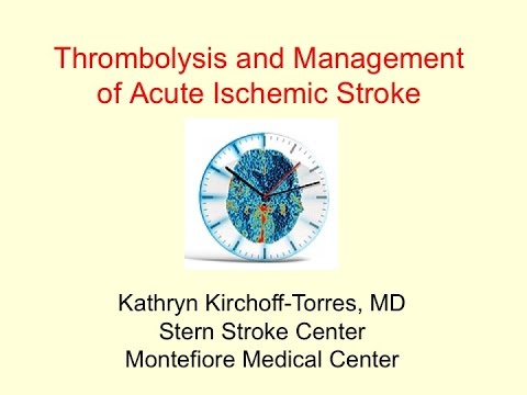 Jacobi Grand Rounds: Thrombolysis and Management of Acute Ischemic Stroke