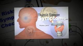 Thyroid and Sleep | Hyperthyroidism
