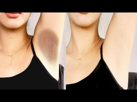 Thumbnail: How To Lighten Your Dark Underarms Permanently - 100% Effective Home Remedy For Dark Body Parts