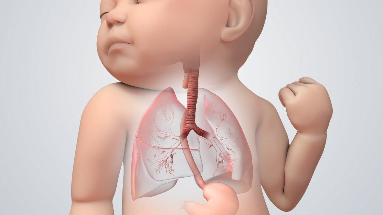 Tracheoesophageal Fistula (TEF, TOF) I Nucleus Health - YouTube