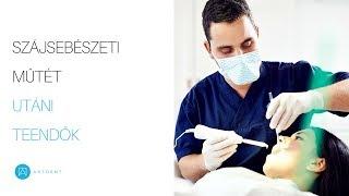a látás romlott a fogászati kezelés miatt