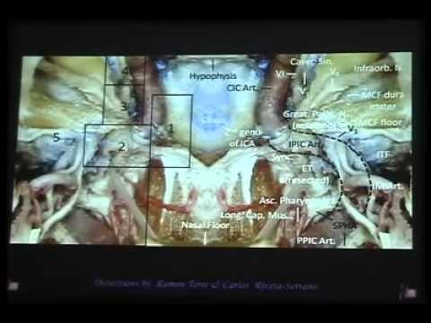 Anterior skull base anatomy - Prof. Carrau - YouTube