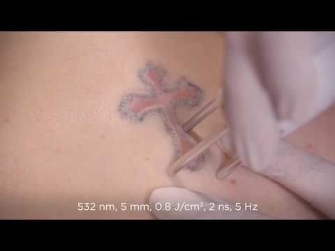 Tattoo treatment video -- Tallahasse Plastic Surgery Clinic