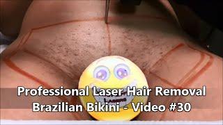 Repeat youtube video Professional Laser Hair Removal - Brazilian Bikini