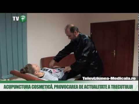 acupunctura penisului)