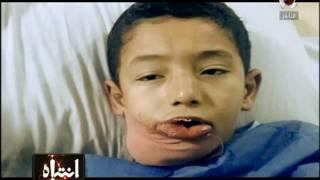 كسور فى الجمجمة ونزيف داخلى وجروح ب50 غرزة ضريبة ضرب تلاميذ المدارس فى مصر | انتباه