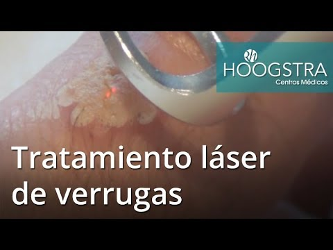 Tratamiento láser de verrugas (17105)