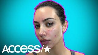 Kim Kardashian Once Tried This Strange Diet To Help Psoriasis