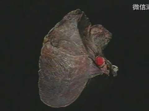 局部解剖学【胸膜和肺解剖】Regional Anatomy [Pleura And Lung Anatomy]