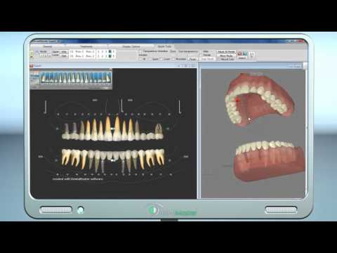 3D treatment planning , better than any ready made animation