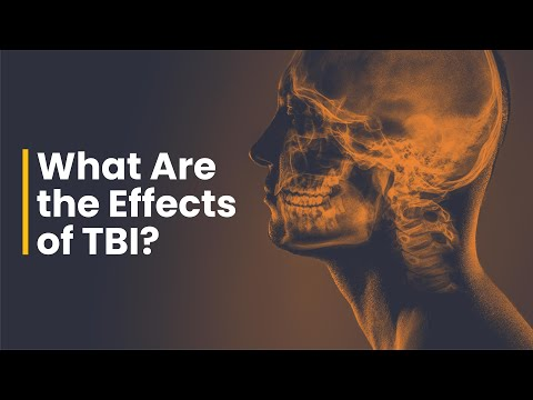 Short and Long Term Effects of a Concussion - Head Injury Lawyers Bisnar Chase