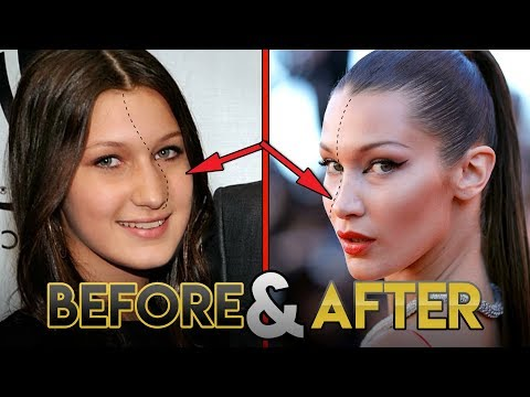 Bella Hadid | Before and After Transformations