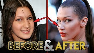 Bella Hadid | Before And After Transformations   Plastic Surgery Rumors, Make Up, Fitness & More
