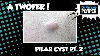 A Twofer: Part Two - Two Types of Cysts