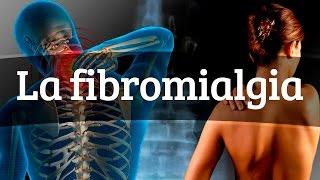 Fibromialgia de síntomas comunes