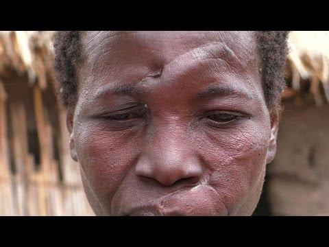 """De nombreux meurtres de """"sorcières"""" en Tanzanie"""