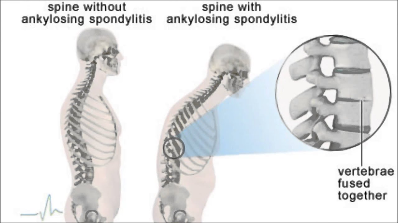 Image result for Ankylosing spondylitis