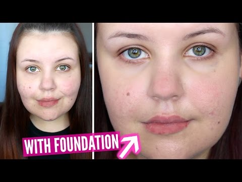 First Impressions - Make Up For Ever Water Blend Foundation (Acne Scarring) - 동영상